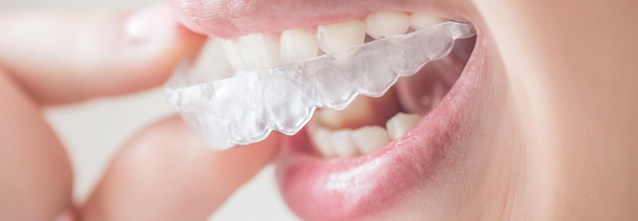 Hartung Kläger – fast unsichtbare Zahnspange